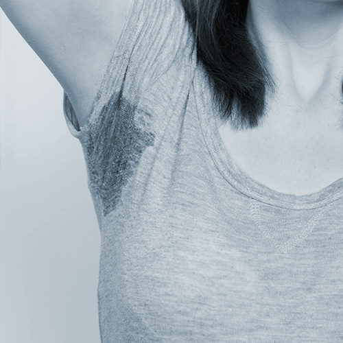 Excessive Sweating (Hyperhidrosis)