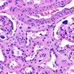 Rare Disease Day - Cystinosis