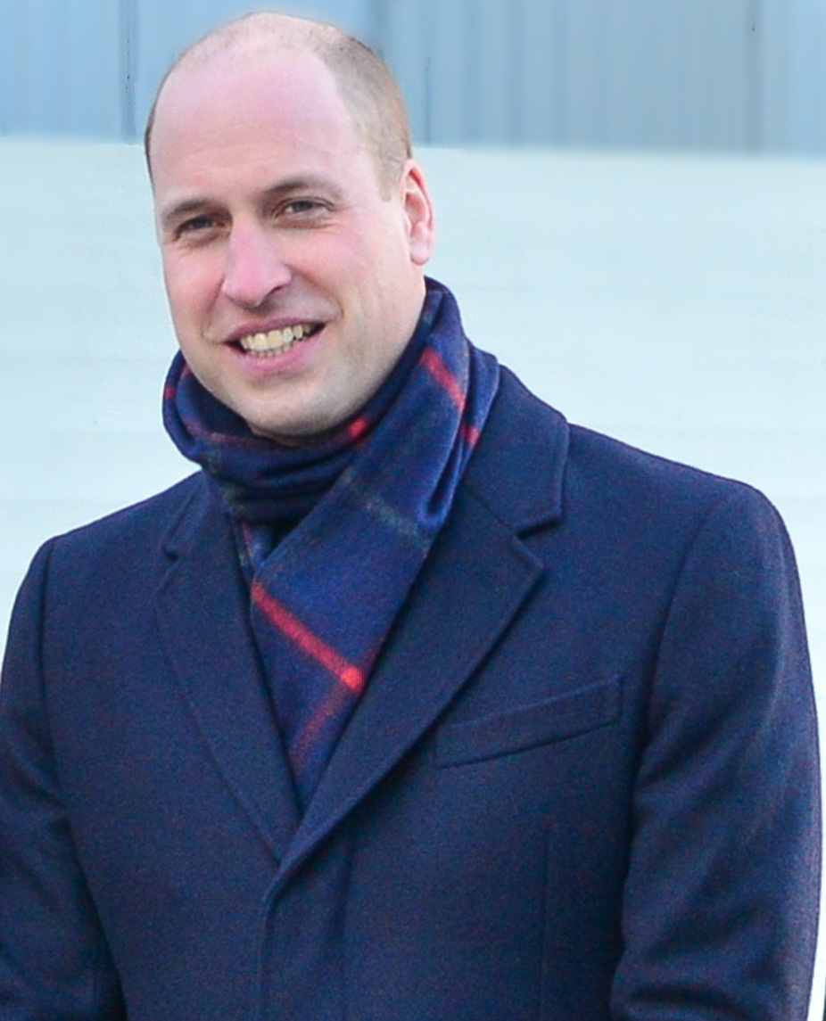 Prince William with male pattern baldness